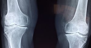X-ray of knees.